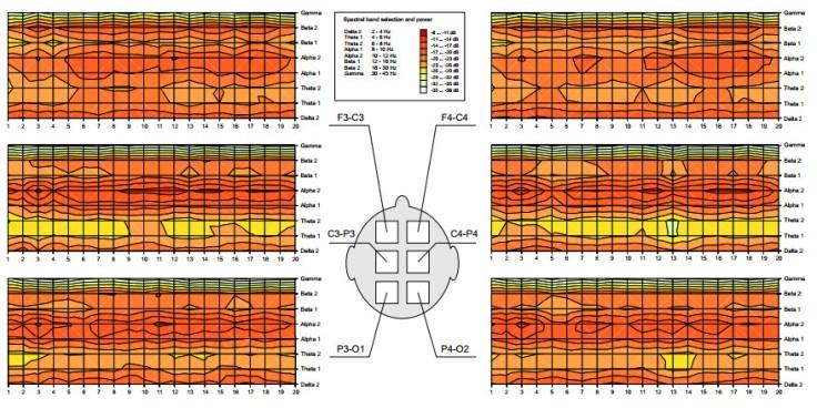 teplans-evolution-of-spectral-power-in-bands-2